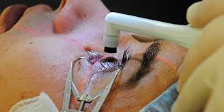 cataract surgery complications to look