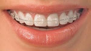 نتيجة بحث الصور عن تقويم الاسنان