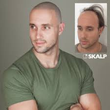 skalp is one of the best hair loss treatments available in 2018