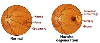 Age Related Macular Degeneration Eye Chart Age Related Macular Degeneration Amd Johns Hopkins Medicine