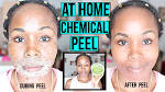 best face peel for dark spots
