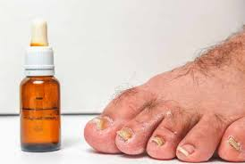 12 essential oils for toenail fungus