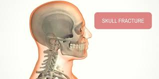 images?q=tbn:ANd9GcQsd  LJ5bEZy9QoXMFAVRQwkmRrbO9AfqrMojc8bw1AGIA6srs - علل ضربه مغزی و انواع آن (بخش 2)