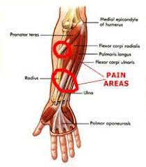 Tendons are a bit like white rubber bands. Pin On Get It In Gear