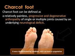Charcots arthropathy