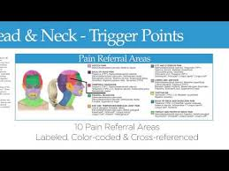Pain Referral Areas Headache And Neck Trigger Point Chart