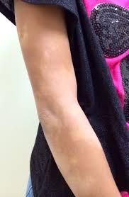 Skin Allergy Doctors in Florida   Skin Treatment