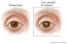 Phacoemulsification Surgery For Cataracts Healthlink Bc