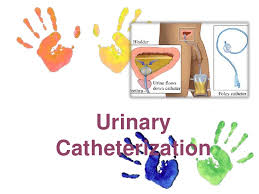 Bladder Catheterisation Urinary Catheterization