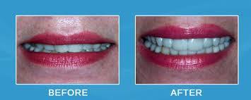 tmj dentist in houston reveals a secret