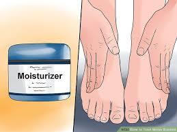 3 Ways to Treat Winter Eczema - wikiHow
