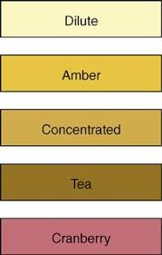 Urine Color And Clarity Chart 22 Urinary Elimination Nurse Key