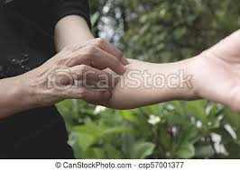 Women scratch itch with hand. woman scratching her arm healthcare ...