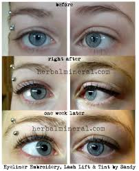 lash line before and after