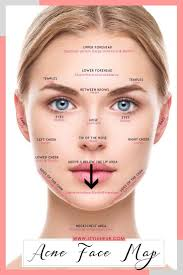 Get Rid Of Cheek Acne Acne On Nose Chin Acne Causes Acne