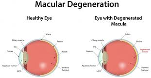 ilration of an eye with macular degeneration