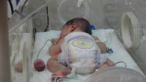 Yüksekova'da 3 saatlik bebeğe omirilik ameliyatı yapıldı