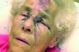 Ivy (84) beaten for £25 - Manchester Evening News