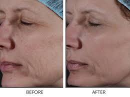 non ablative skin resurfacing