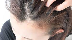 Follicle Condition: Telogen Effluvium|  What is hair made of - TopTenHairCare.net