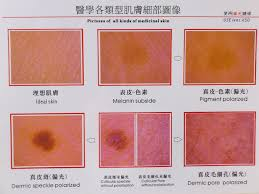 Skin Scanner Color Chart Skin Color Analyzer 11