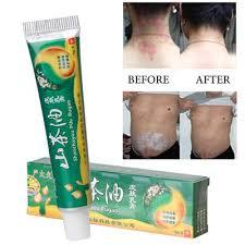Best Design Chinese Herbal Dermatitis Eczema Pruritus Psoriasis ...