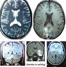 Головной мозг желудочек мм ru Раскраска парашютных комбинезонов