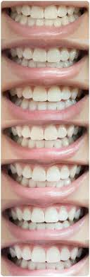 real results from smile brilliant s professional teeth whitening system you can achieve professional results from