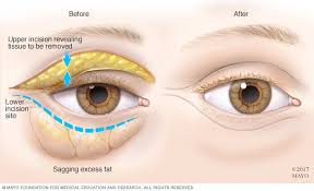 Bags under eyes - Diagnosis and treatment - Mayo Clinic