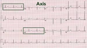 How To Read Cardiogram Chart Ecg Interpretation Recognising Normal