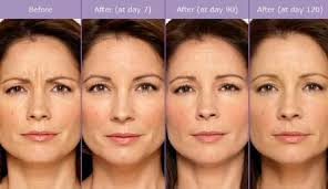 How Long Does Botox Last Botox 101 Elite Medical Aesthetics Centennial Co
