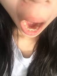 Can I Wear Braces On Just My Lower Teeth To Correct An