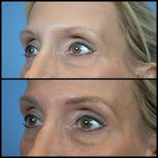 eyebrow microblading blonde hair. #thyroid #eyebrows #microblading #eyebrowembroidery #cork .#westcork eyebrow microblading blonde hair c