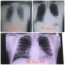 หมอมะเร็งอยากบอก ตอน ทำไมตรวจสุขภาพทุกปีถึงมาเจอมะเร็งในระยะสุดท้าย - Pantip