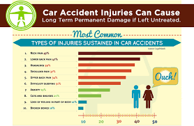 car accident injuries. common car accident injuries