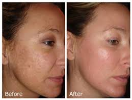 Image result for glycolic  peel
