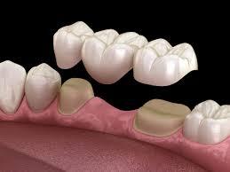 Zahnersatz – Kronen und Brücken