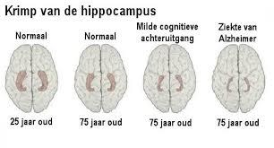 Wittestofafwijkingen in de hersenen bij