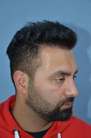 darling buds hair transplant