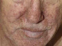steroids side effects skin rash