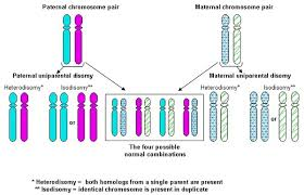 Russell Silver Syndrome Genetics Home Reference Nih