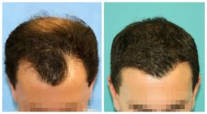 Hair Transplant 3 Months Post Surgery Results Before And