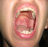 photograph of the inside of an open human mouth one palatine tonsil is also visible white