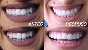 carillas dentales carillas dentales blog sobre sobre salud y farmacia