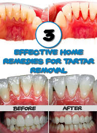 3 effective home remes for tartar removal