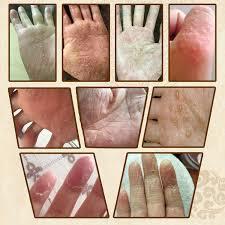 Children's herbs, hands and feet, sweat, blister, hands, feet ...