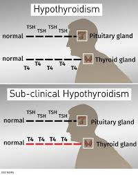 Hypothyroidism Levels Tsh Chart Why Doctors Now Warn Against Routinely Treating Mild Thyroid