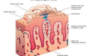 Psoriasis Symptoms Causes And Treatment Methods Beatpsoriasis Org
