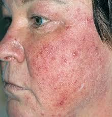 Mách chị em cách  chữa bị viêm da dị ứng trên mặt an toàn