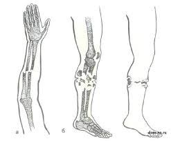 Виды переломов костей Открытые и закрытые переломы костей Дом  Закрытый перелом костей предплечья а и открытый перелом костей голени б